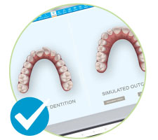 Free Invisalign 3D scan with iTero in South London image