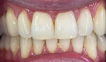 After Invisalign treatment in South London image 1