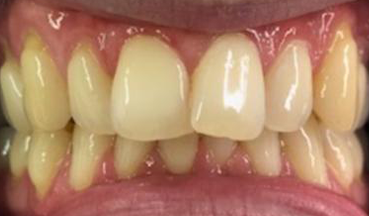 Before Invisalign treatment in South London image 1