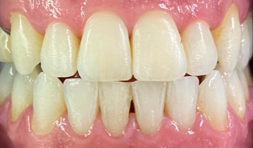 After Invisalign treatment in South London image 2