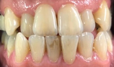 Before Invisalign treatment in South London image 2