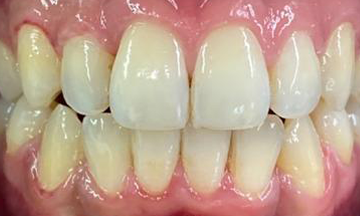 After Invisalign treatment in South London image 3