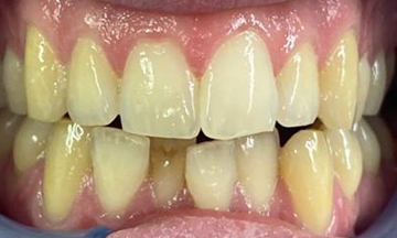 Before Invisalign treatment in South London image 4