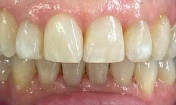 After Invisalign treatment in South London image 5
