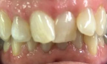 Before Invisalign treatment in South London image 5