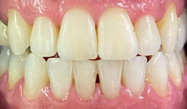 After Invisalign treatment in Barnes South London image 1