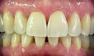 After Invisalign treatment in Barnes South London image 2