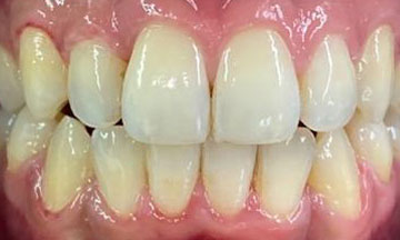 After Invisalign treatment in Barnes South London image 3