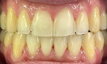 After Invisalign treatment in Barnes South London image 4