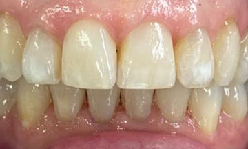 After Invisalign treatment in Barnes South London image 5