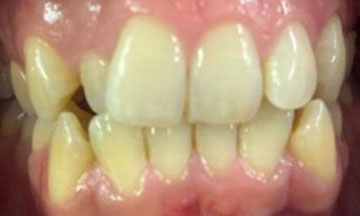 Before Invisalign treatment in Barnes South London image 3